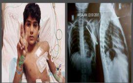 Cardiac Pediatric Team of National Institute of Cardio Vascular Disease perform miracle surgery
