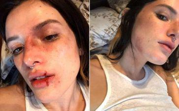 Bella Thorne Faces Backlash for Bruised Makeup Look on Halloween